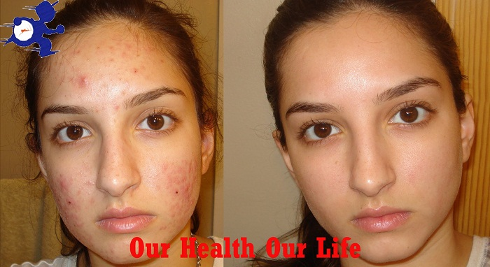 Know the great strategy of eliminate acne at one night