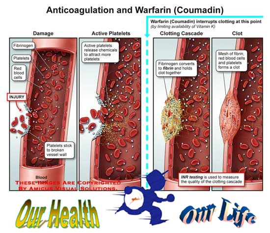 anticoagulated