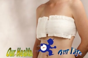 Care after surgery of the breast and armpit - Health care