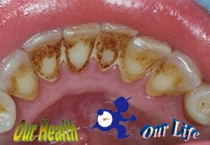 how to remove plaque and improve dental health? - Disease