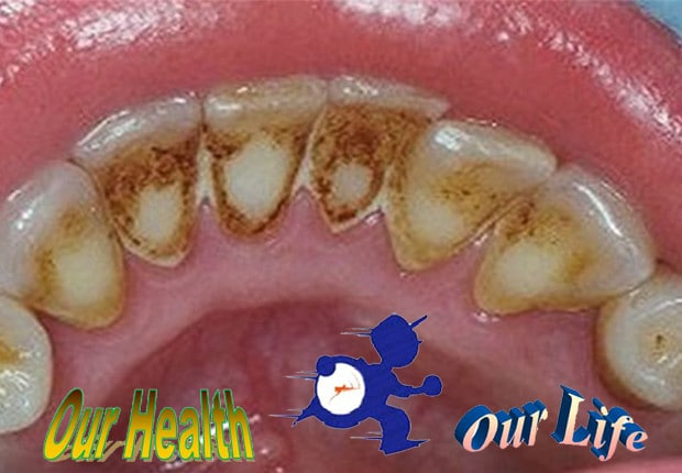 How I can remove plaque and improve my oral health?